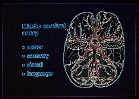 055 monitor brain