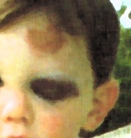 black eye 2